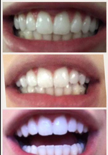 Crest 3d White Monthly Whitening Boost Whitestrips Teeth