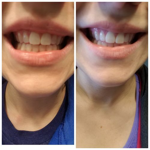 Size Inches Snow Teeth Whitening