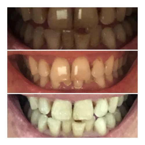 Kit  Snow Teeth Whitening Size In Centimeters