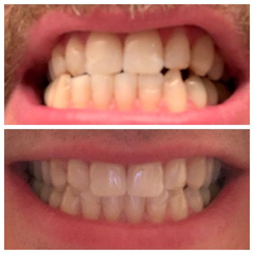 White Light Teeth Whitening Instructions