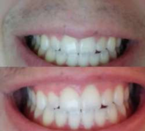 Advanced Teeth Whitening Strips 14 Pcs