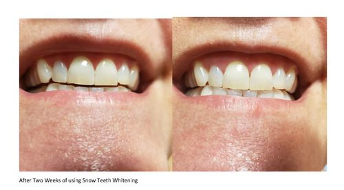 Size In Centimeters Snow Teeth Whitening Kit
