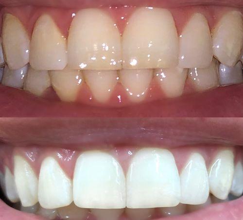 Teeth Whitening Strips X28 Billion Dollar Smile