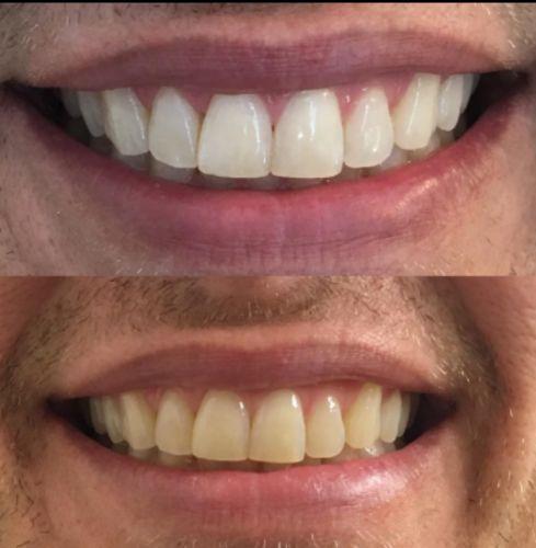 Advanced Teeth Whitening Strips 2 Weeks Supply Body Health Care