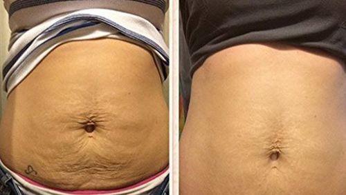 Rtopr Remove Pregnancy Stretch Marks Mango Cream