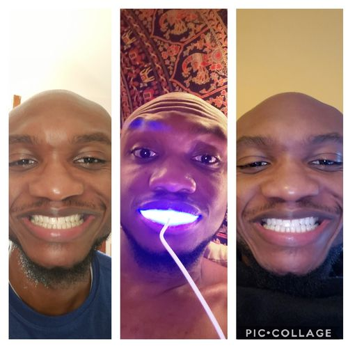 Eugene M. review of Extra Strength Whitening Refills