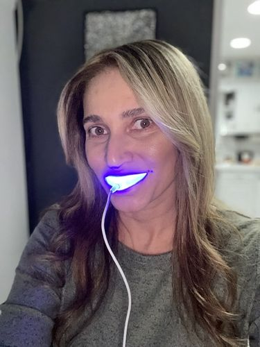 Michelle S. review of Snow® Teeth Whitening At-Home System [All-in-One Kit]