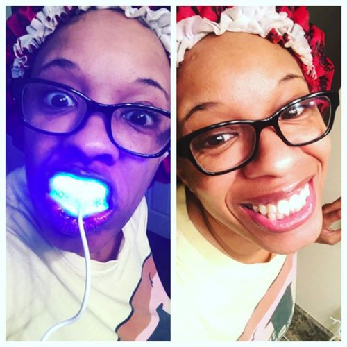 Rosalyn D. review of Snow® Teeth Whitening At-Home System [All-in-One Kit]