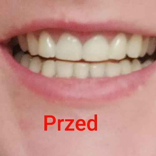 Smilesecret erfahrung mit Smile Secret