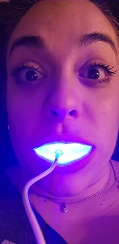 Amanda M. review of Snow® At-Home Teeth Whitening (ALL-IN-ONE KIT)