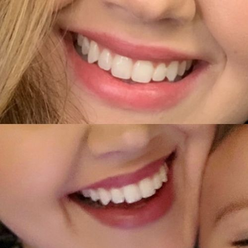 Briana R. review of Snow® At-Home Teeth Whitening (ALL-IN-ONE KIT)
