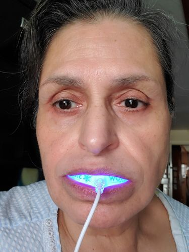 Rebecca R. review of Snow® At-Home Teeth Whitening (ALL-IN-ONE KIT)