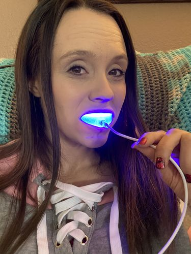 ashley s. review of Snow® At-Home Teeth Whitening (ALL-IN-ONE KIT)
